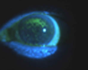 Confluent Dry Eye Staining