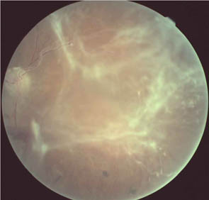 Old Retinal Detachment with Fibrosis