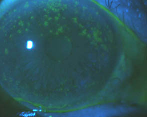 Superior Corneal Staining in Dry Eye