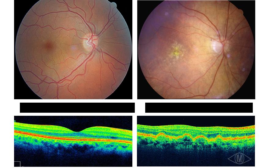 Matheson Optometrists Macular Degeneration Information