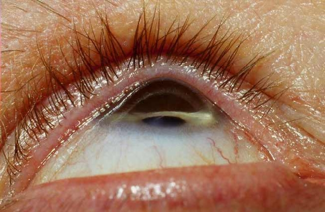 keratoconus_photo
